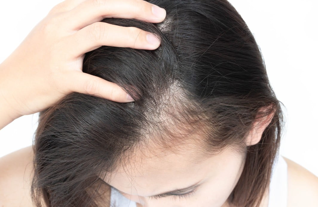 Women hair loss services at Elite Health Institute in Lewis Center, Ohio